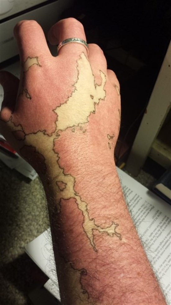 Man Transforms His Birthmark Into A Map Of A New World