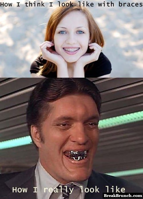 How people look like with braces