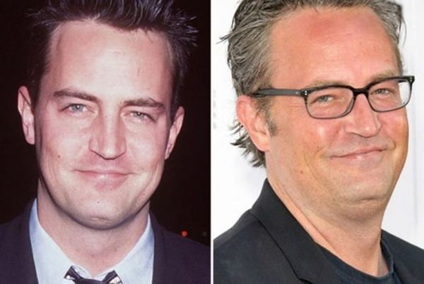 celebrity-who-aged-bad-20151224-2