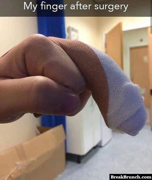 finger-after-surgery-081818